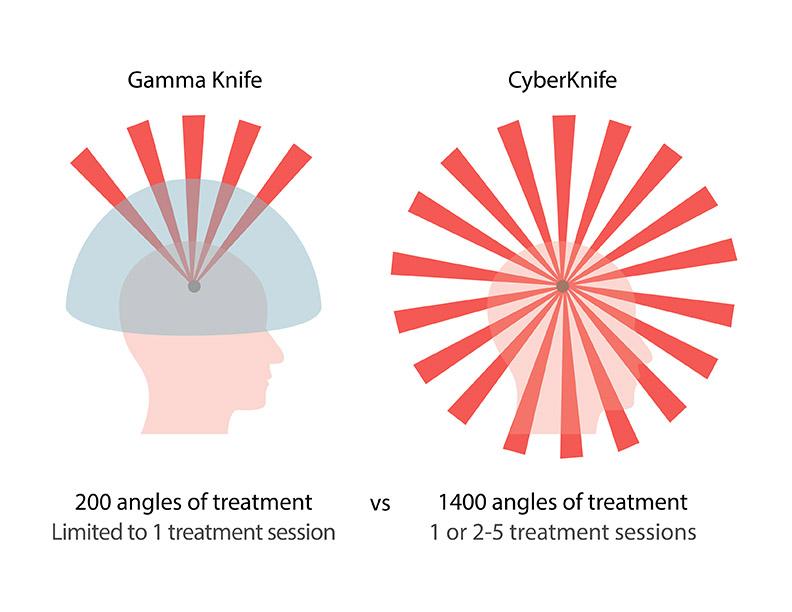 Phoenix Radiotherapy Cyberknife Vs Gamma Knife